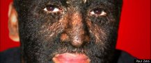Edmund Burke's Dreamboat Wolf Boy Larry Gomez Hopes New Genetic Findings Can Care 'Werewolf Syndrome Huffingpost.com